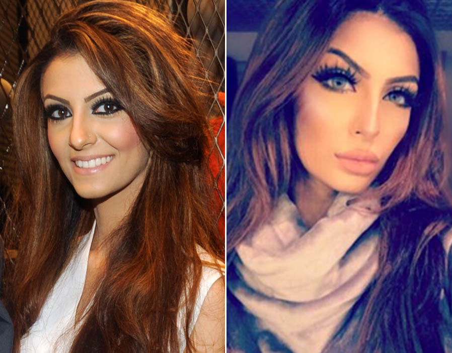 Faryal Makhdoom's shocking pictures of Before & After Cosmetic Surgery