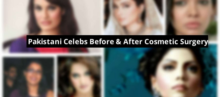 Pakistani Celebs : Before & After Cosmetic Surgery.