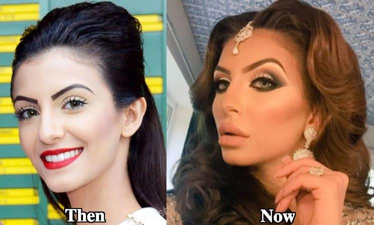I Do Not Have Any Surgeries Done: Faryal Makhdoom!
