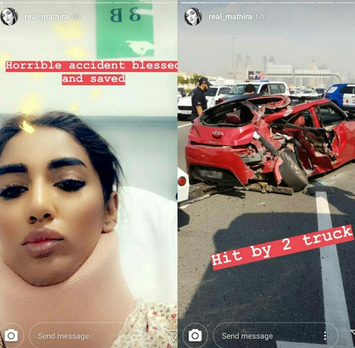 Mathira Met With A Car Accident