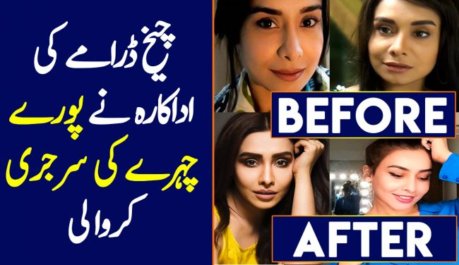 Maira Khan's Before and After Plastic Surgery Pictures