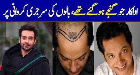 Pakistani Celebrities Who Got Hair Transplant
