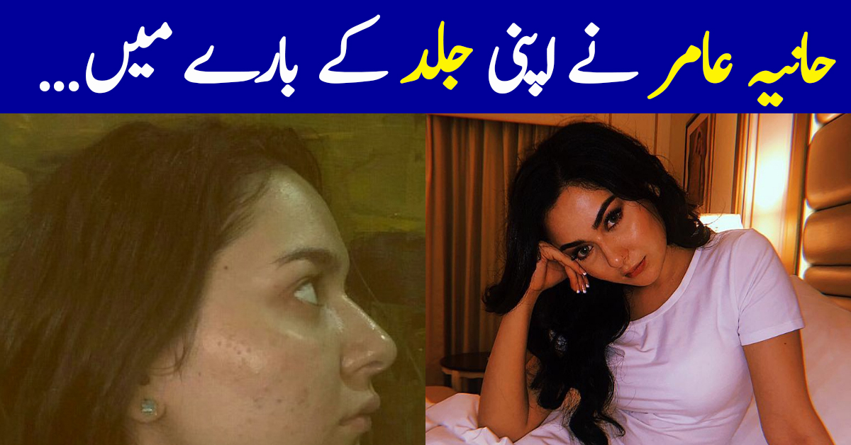 Hania Aamir Talks About Skin Insecurities