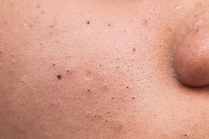 Solutions to common skin and hair problems