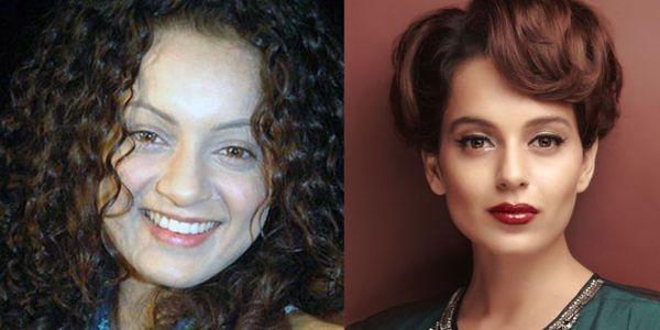 Kangana Ranaut plastic surgery before after