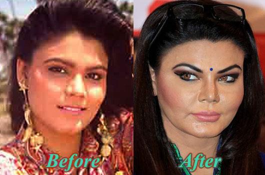 rakhi sawant plastic surgery photo