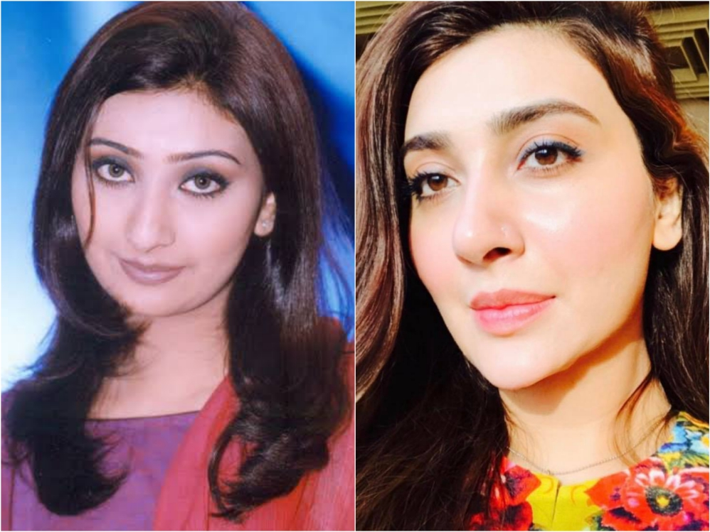 Pakistani Celebrities Who Got Cosmetic Nose Surgery Done
