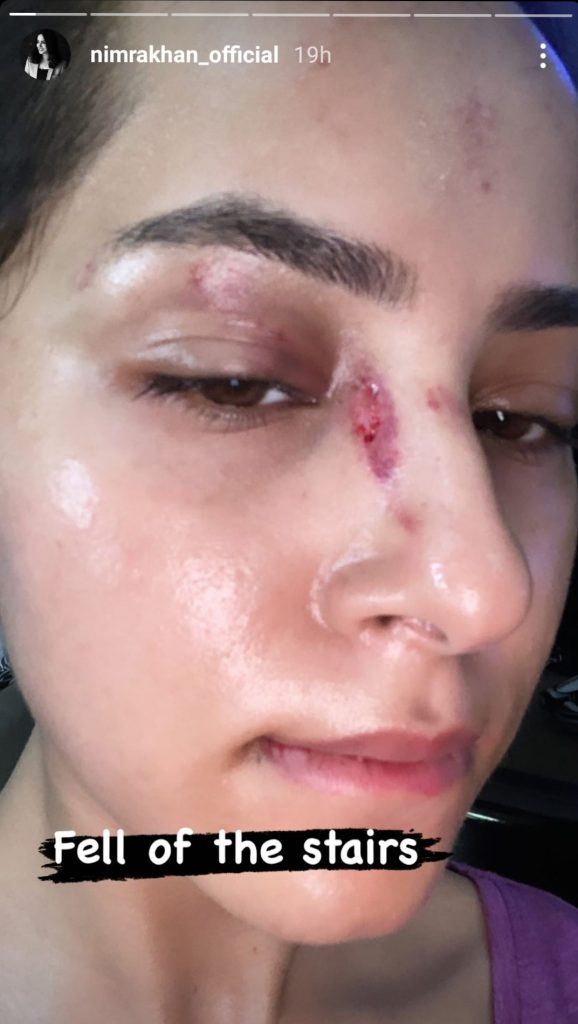 Nimra Khan's Marriage In Trouble After Injury