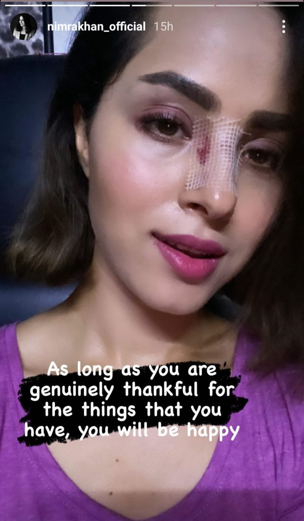 Actress Nimra Khan's Nose Got Injured Badly