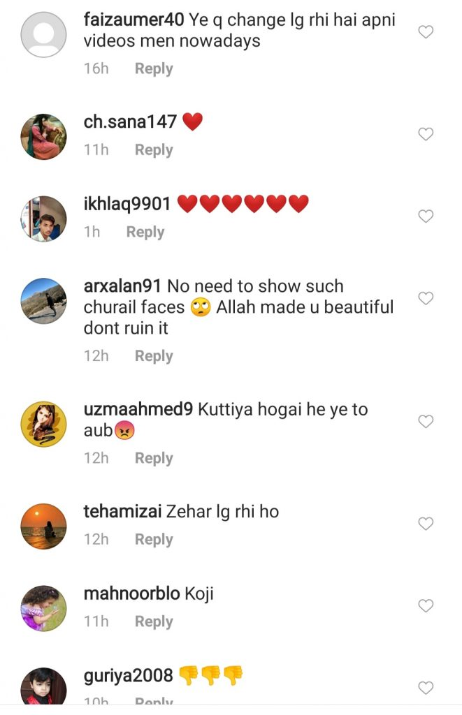 Hania Aamir Had Lip Fillers And People Can't Digest It