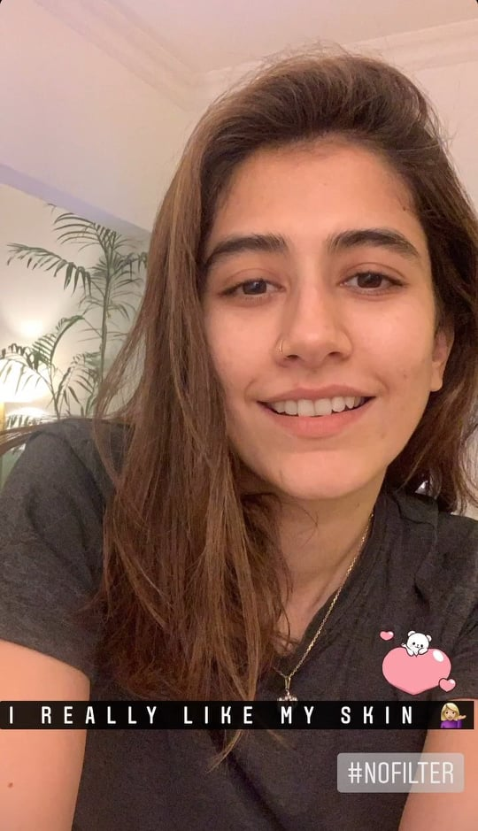 Syra Yousaf's Response After Public Criticism On Her Skin