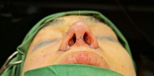 Saheefa Jabbar Khattak Undergoes A Painful Surgery